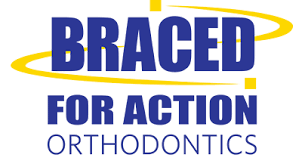 Braced For Action